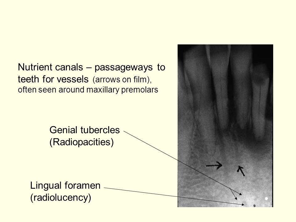 Nutrient canals – passageways to teeth for vessels (arrows on film), often seen around maxillary premolars Lingual foramen (radiolucency) Genial tubercles (Radiopacities)