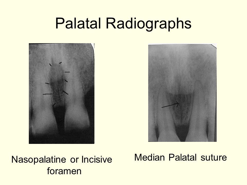 Palatal Radiographs Median Palatal suture Nasopalatine or Incisive foramen