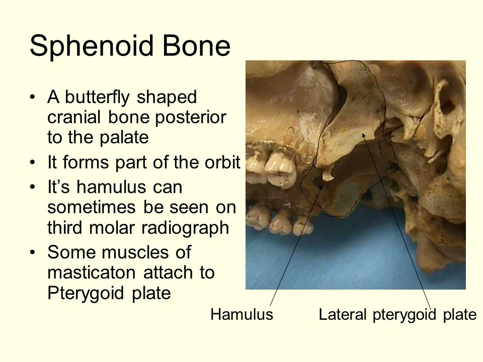 Sphenoid Bone A butterfly shaped cranial bone posterior to the palate It forms part of the orbit It's hamulus can sometimes be seen on third molar radiograph Some muscles of masticaton attach to Pterygoid plate Lateral pterygoid plateHamulus