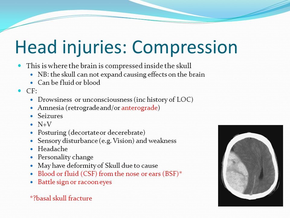 Head injuries: Compression This is where the brain is compressed inside the skull NB: the skull can not expand causing effects on the brain Can be fluid or blood CF: Drowsiness or unconsciousness (inc history of LOC) Amnesia (retrograde and/or anterograde) Seizures N+V Posturing (decortate or decerebrate) Sensory disturbance (e.g.