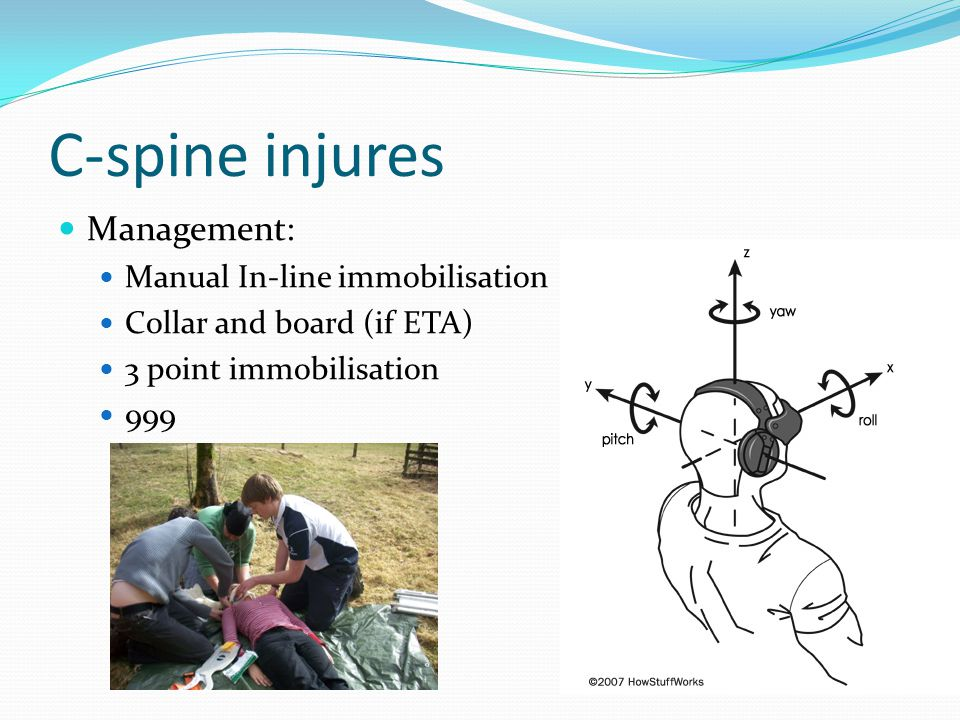 C-spine injures Management: Manual In-line immobilisation Collar and board (if ETA) 3 point immobilisation 999