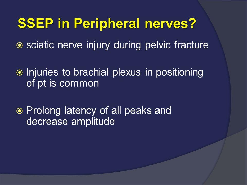 SSEP in Peripheral nerves? SSEP in Peripheral nerves?  sciatic nerve injury during pelvic fracture  Injuries to brachial plexus in positioning of pt