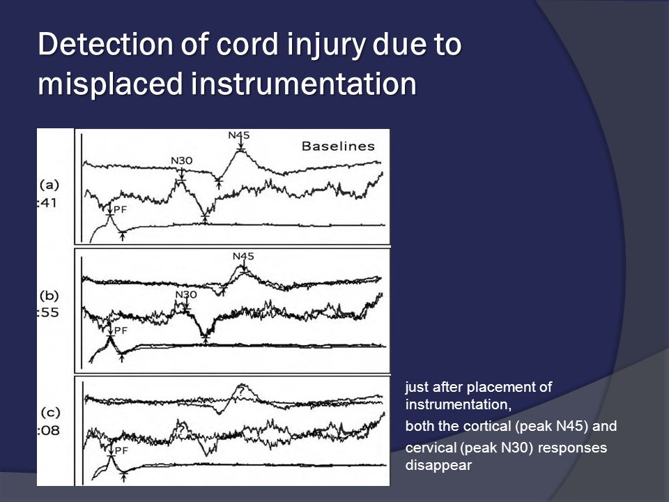 Detection of cord injury due to misplaced instrumentation  just after placement of instrumentation,  both the cortical (peak N45) and  cervical (pe