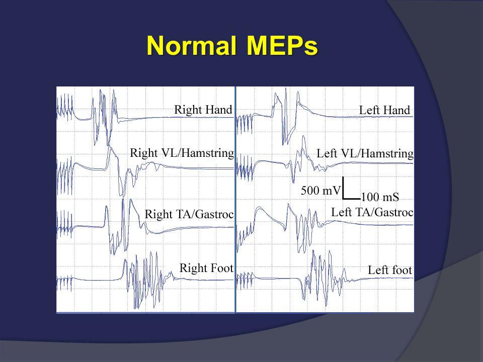 Normal MEPs Normal MEPs