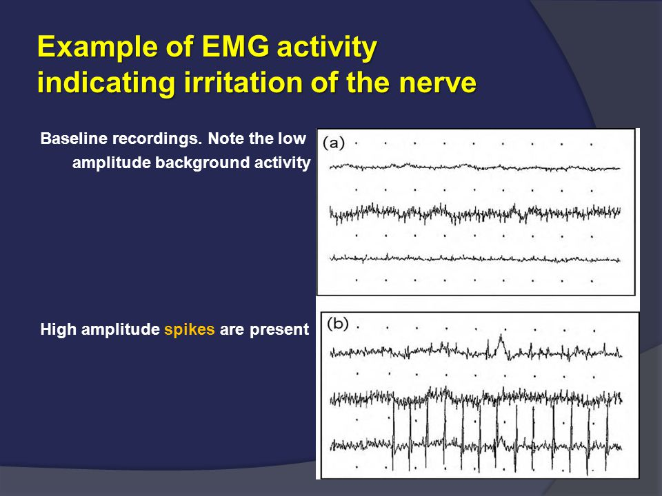 Example of EMG activity indicating irritation of the nerve Baseline recordings. Note the low amplitude background activity High amplitude spikes are p