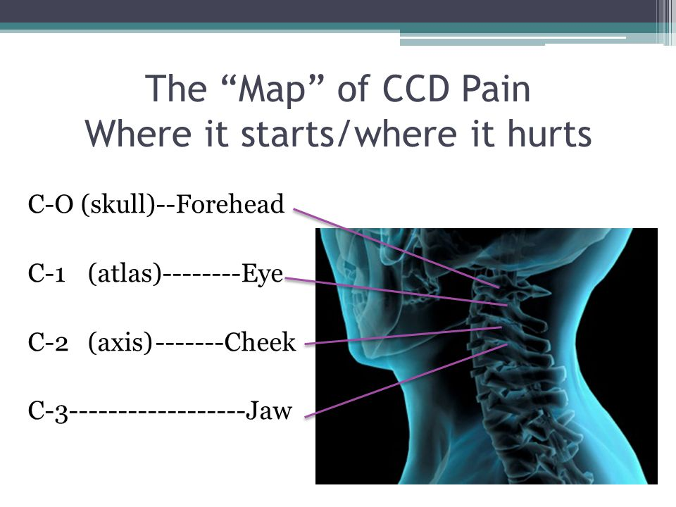 "The ""Map"" of CCD Pain Where it starts/where it hurts C-O (skull)--Forehead C-1(atlas)--------Eye C-2(axis)-------Cheek C-3------------------Jaw"