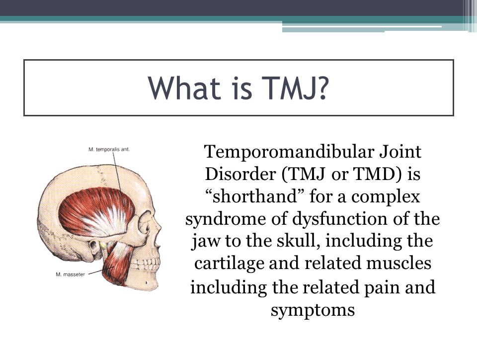 "What is TMJ? Temporomandibular Joint Disorder (TMJ or TMD) is ""shorthand"" for a complex syndrome of dysfunction of the jaw to the skull, including the"