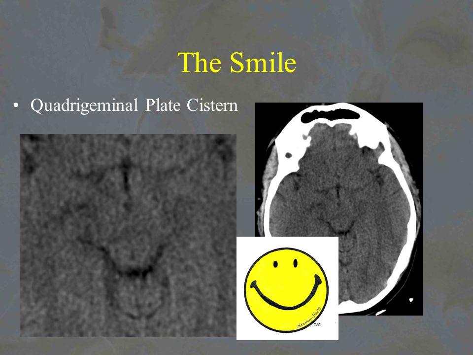 The Smile Quadrigeminal Plate Cistern
