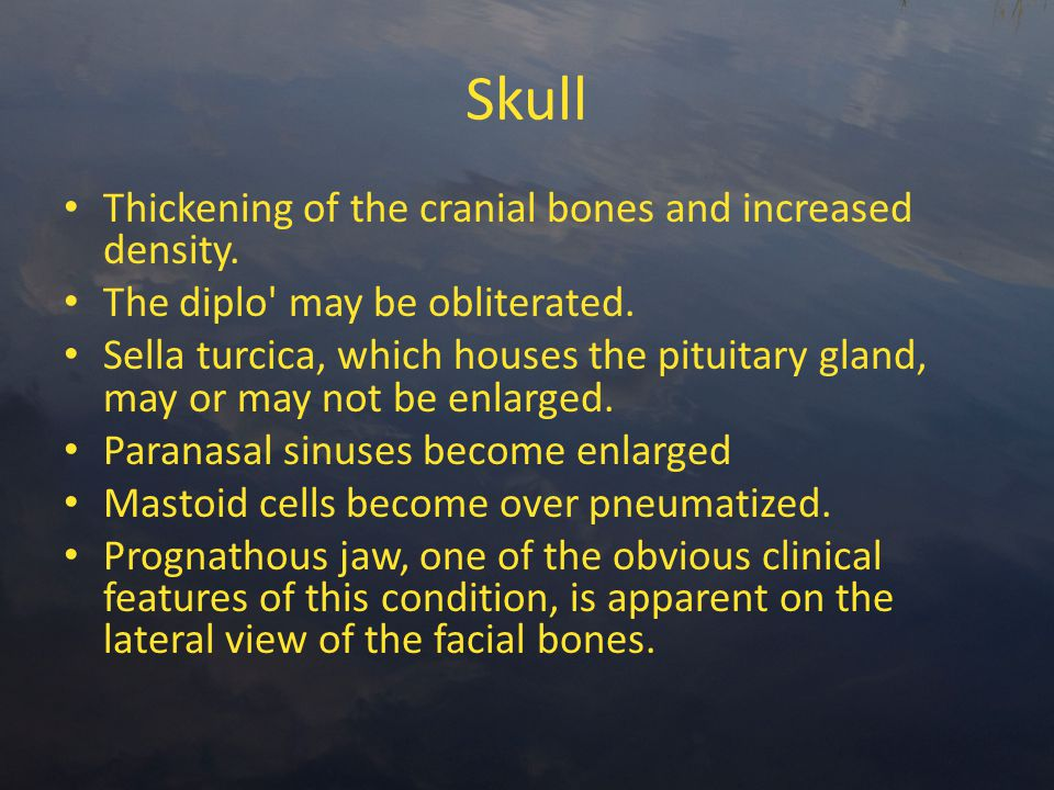Skull Thickening of the cranial bones and increased density.
