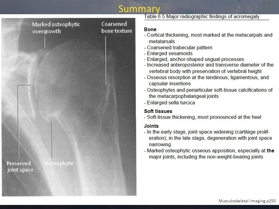 Summary Musculoskeletal imaging p255
