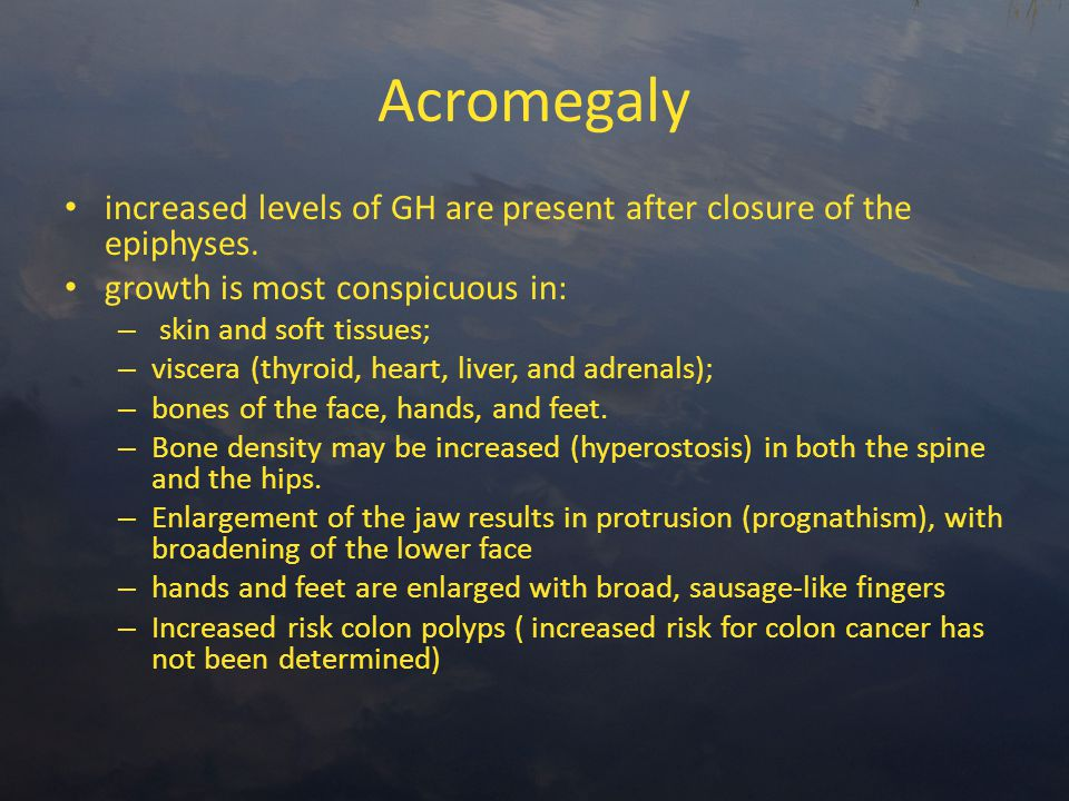 Acromegaly increased levels of GH are present after closure of the epiphyses.