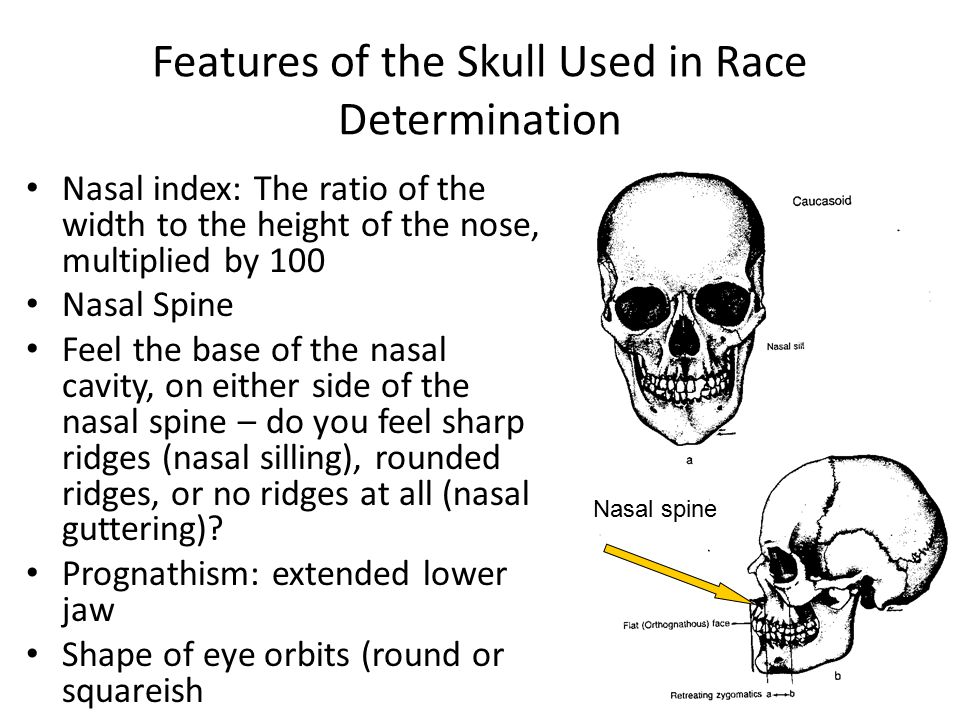 Features of the Skull Used in Race Determination Nasal index: The ratio of the width to the height of the nose, multiplied by 100 Nasal Spine Feel the