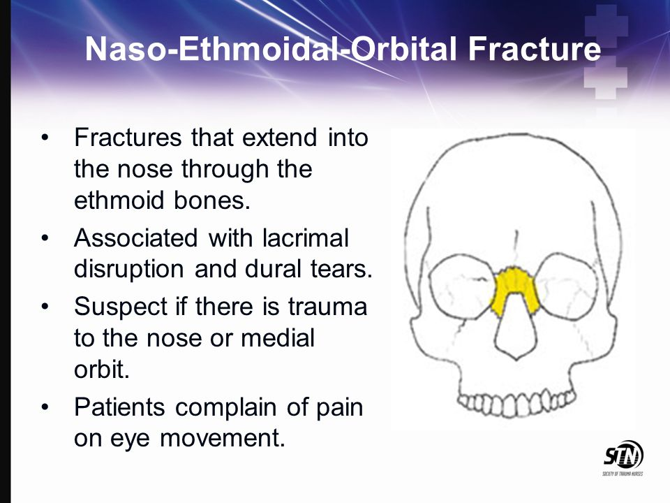 Naso-Ethmoidal-Orbital Fracture Fractures that extend into the nose through the ethmoid bones. Associated with lacrimal disruption and dural tears. Su