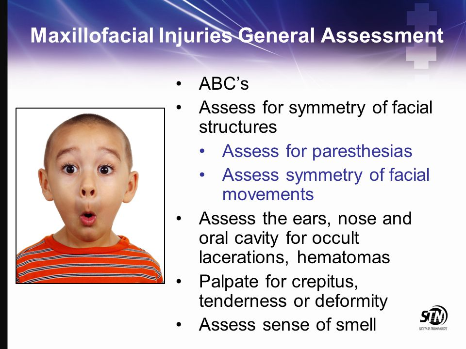 Maxillofacial Injuries General Assessment ABC's Assess for symmetry of facial structures Assess for paresthesias Assess symmetry of facial movements A