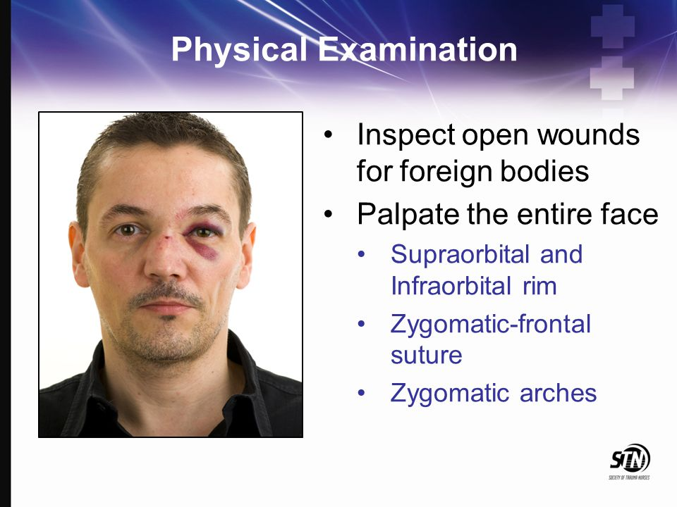 Physical Examination Inspect open wounds for foreign bodies Palpate the entire face Supraorbital and Infraorbital rim Zygomatic-frontal suture Zygomat