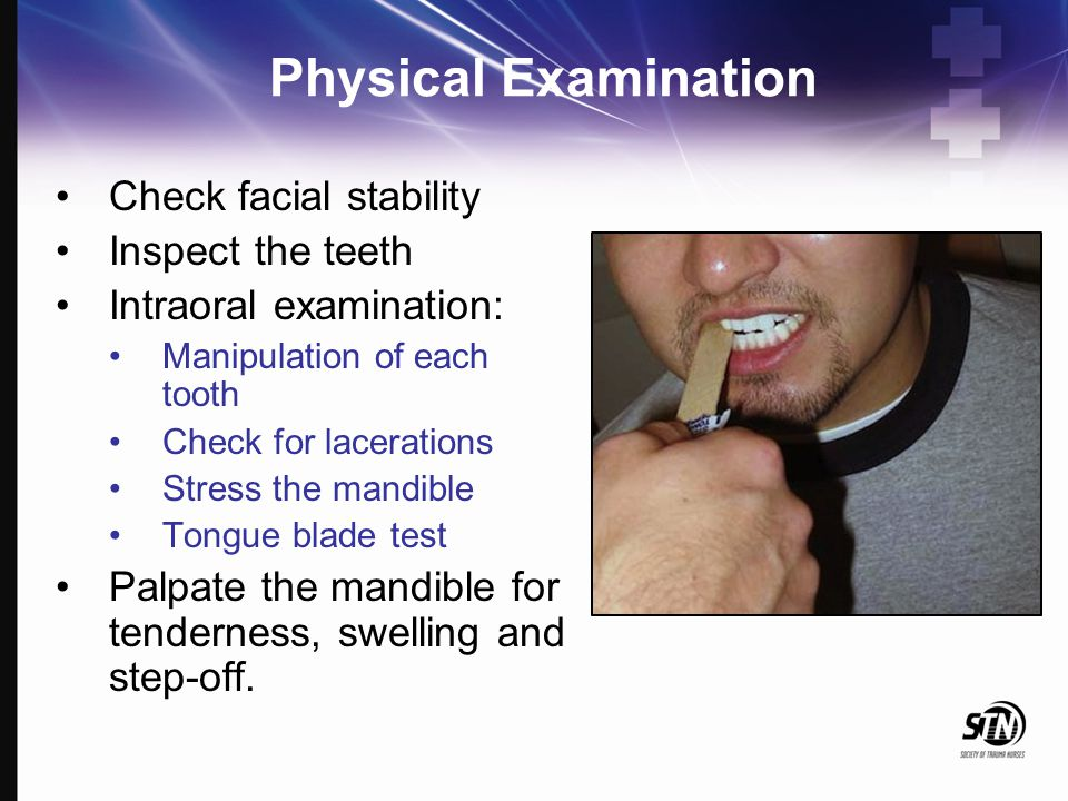 Physical Examination Check facial stability Inspect the teeth Intraoral examination: Manipulation of each tooth Check for lacerations Stress the mandi