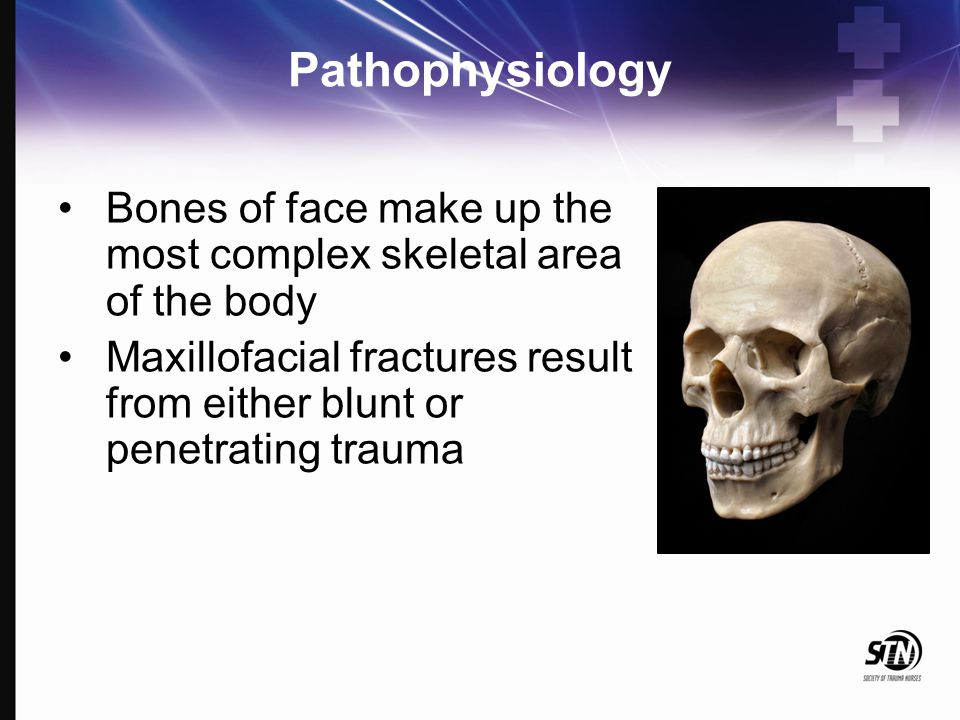 Pathophysiology 'G' force is a measure of acceleration not produced by gravity High Impact: Supraorbital rim – 200 G Symphysis Mandible –100 G Frontal – 100 G Angle mandible – 70 G Low Impact: Zygoma – 50 G Nasal bone – 30 G