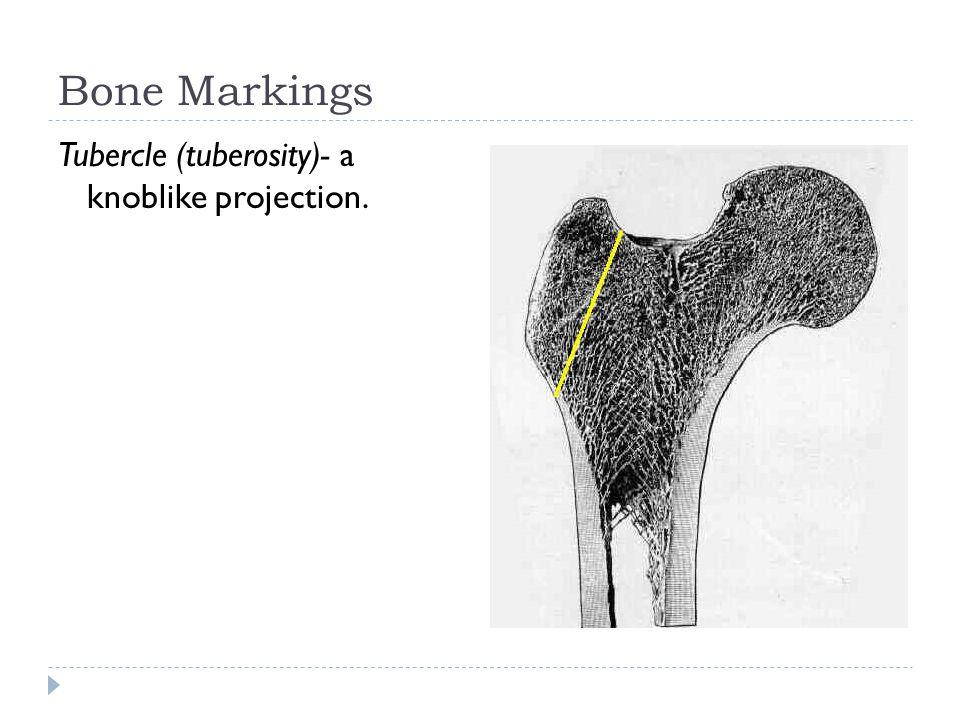 Bone Markings Tubercle (tuberosity)- a knoblike projection.