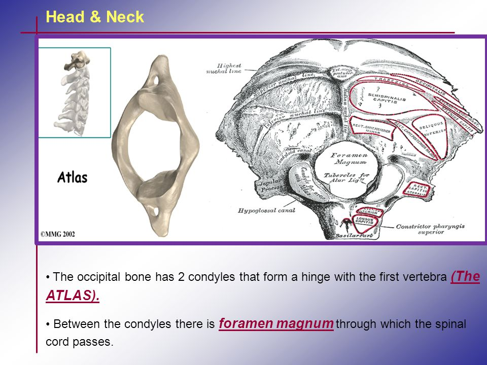 Head & Neck The occipital bone has 2 condyles that form a hinge with the first vertebra (The ATLAS). Between the condyles there is foramen magnum thro