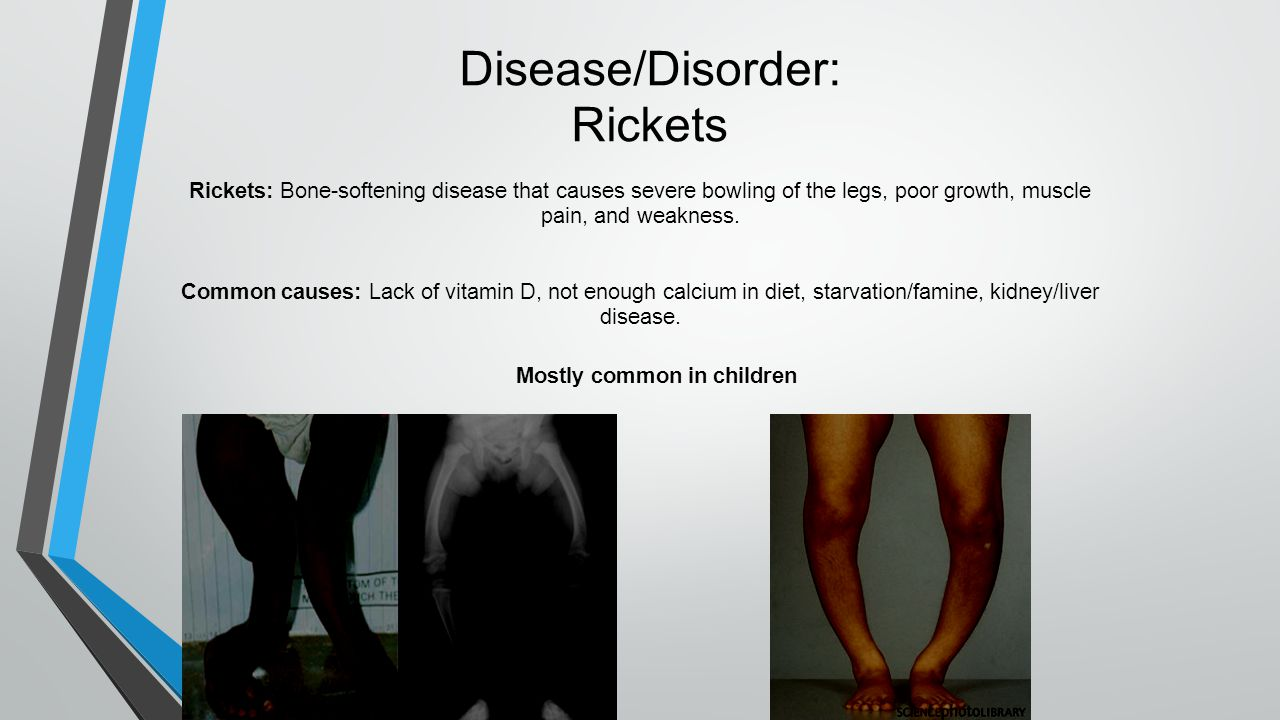 Disease/Disorder: Rickets Rickets: Bone-softening disease that causes severe bowling of the legs, poor growth, muscle pain, and weakness.