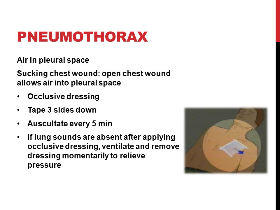 PNEUMOTHORAX Air in pleural space Sucking chest wound: open chest wound allows air into pleural space Occlusive dressing Tape 3 sides down Auscultate