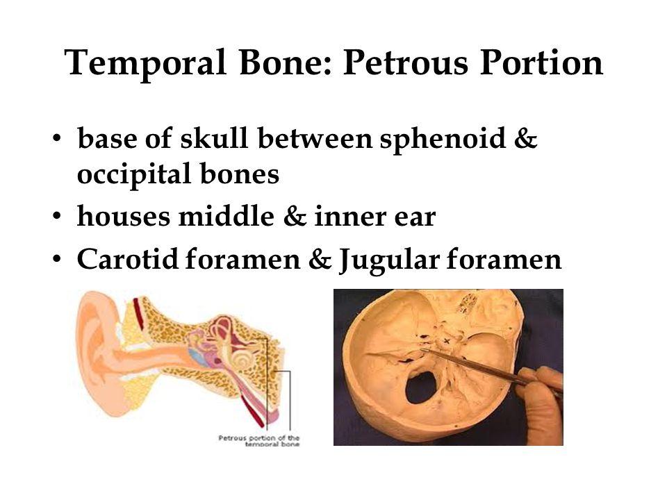 Temporal Bone: Petrous Portion base of skull between sphenoid & occipital bones houses middle & inner ear Carotid foramen & Jugular foramen