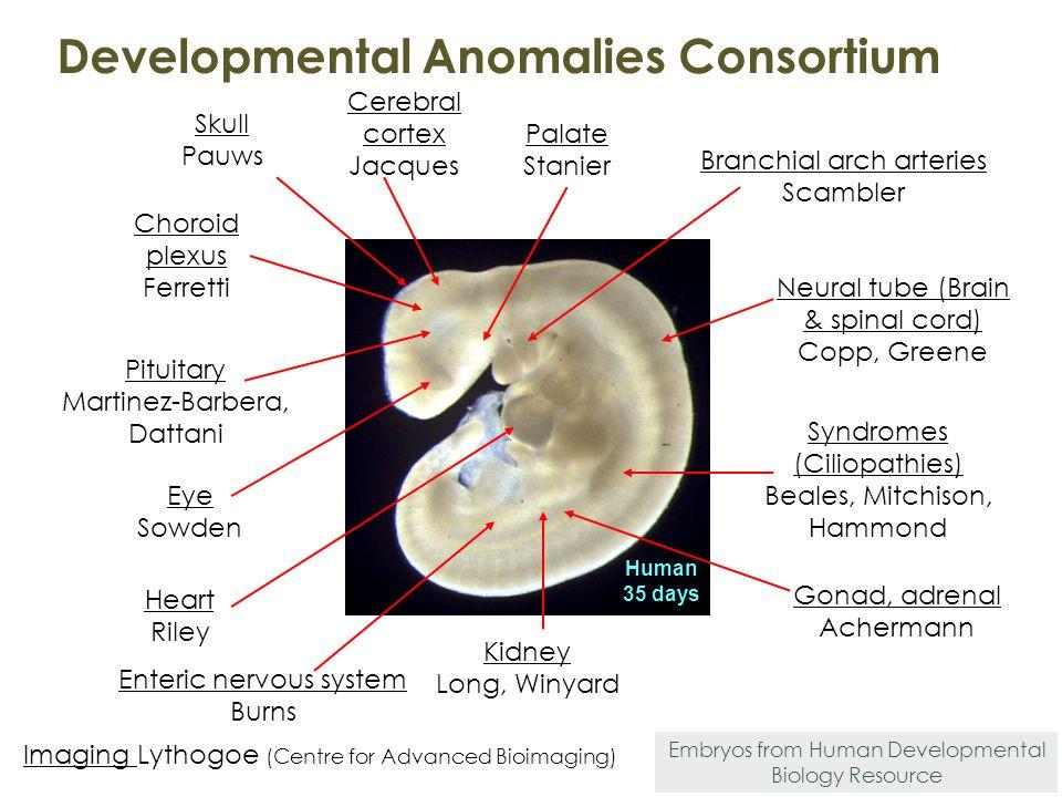 Developmental Anomalies Consortium Human 35 days Eye Sowden Skull Pauws Palate Stanier Branchial arch arteries Scambler Heart Riley Pituitary Martinez