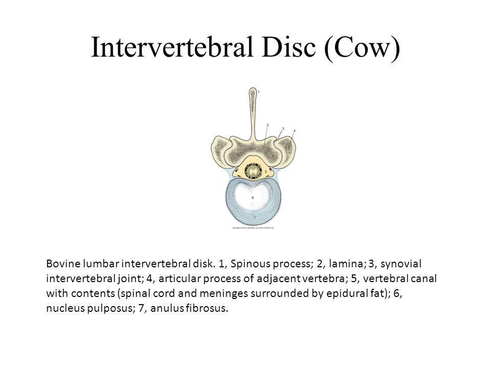 Intervertebral Disc (Cow) Bovine lumbar intervertebral disk.