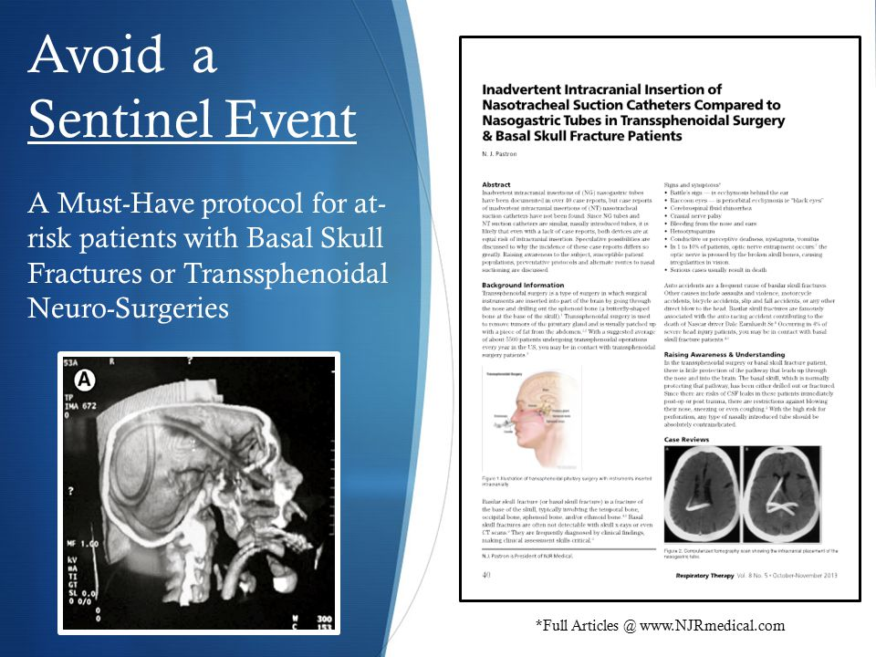 Avoid a Sentinel Event A Must-Have protocol for at- risk patients with Basal Skull Fractures or Transsphenoidal Neuro-Surgeries *Full Articles @ www.NJRmedical.com