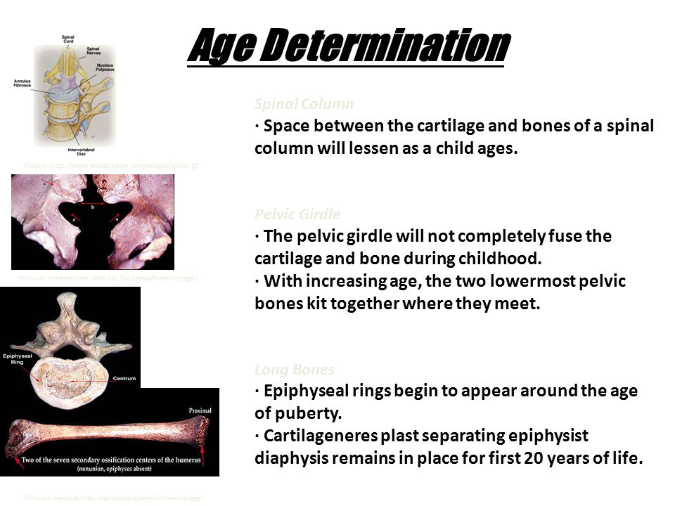 Spinal Column · Space between the cartilage and bones of a spinal column will lessen as a child ages. Pelvic Girdle · The pelvic girdle will not compl