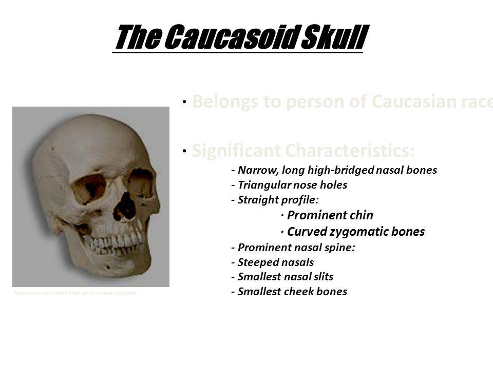 The Caucasoid Skull · Belongs to person of Caucasian race. · Significant Characteristics: - Narrow, long high-bridged nasal bones - Triangular nose ho