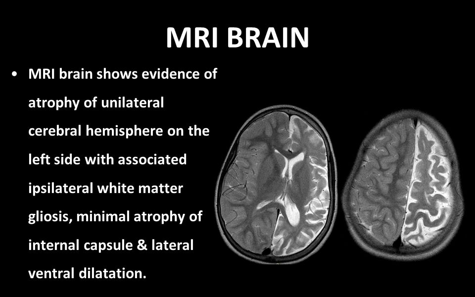 MRI BRAIN MRI brain shows evidence of atrophy of unilateral cerebral hemisphere on the left side with associated ipsilateral white matter gliosis, minimal atrophy of internal capsule & lateral ventral dilatation.