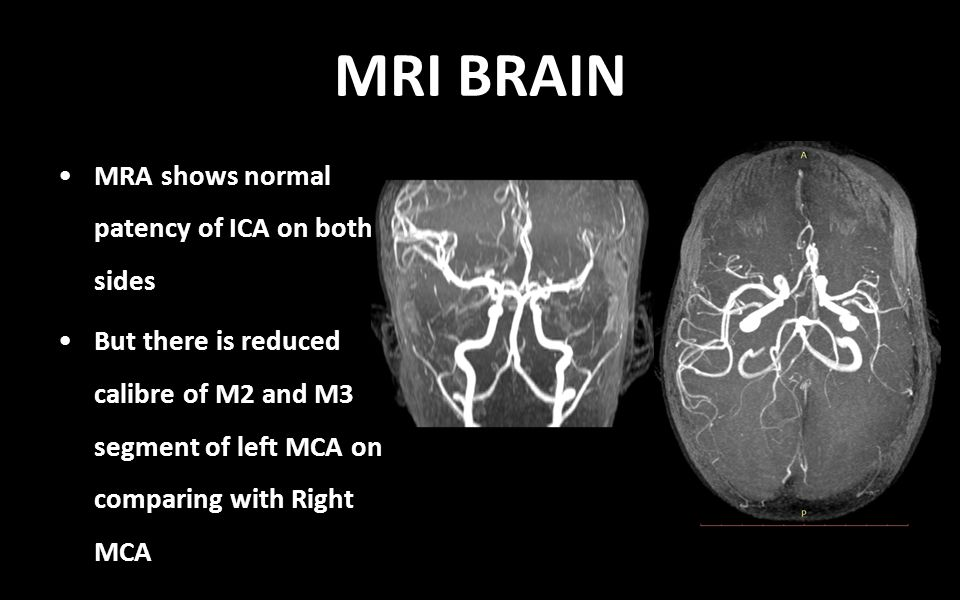MRA shows normal patency of ICA on both sides But there is reduced calibre of M2 and M3 segment of left MCA on comparing with Right MCA MRI BRAIN