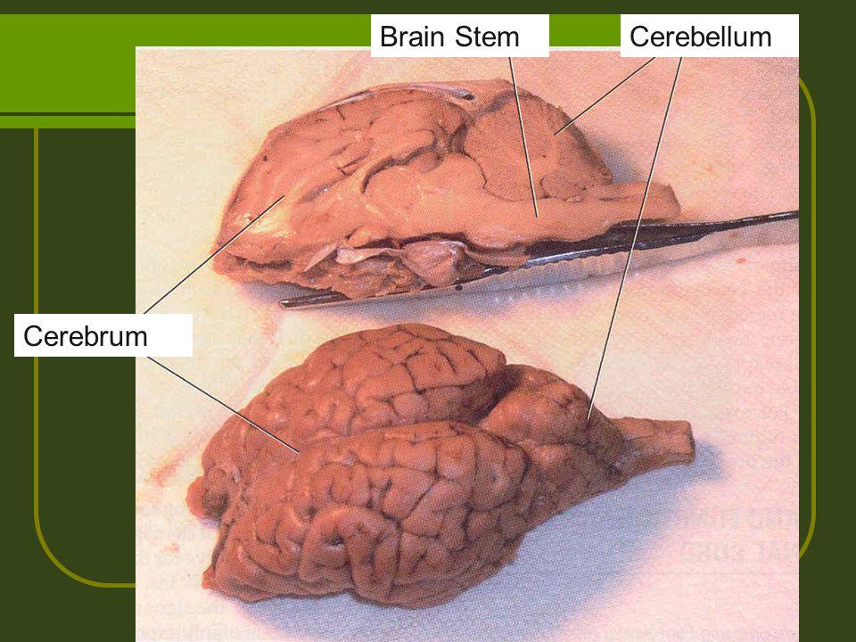 CerebellumBrain Stem Cerebrum