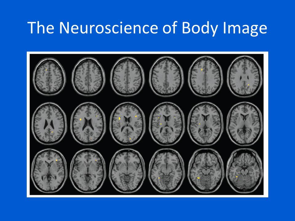The Neuroscience of Body Image