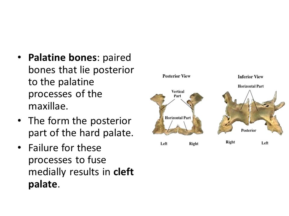 Palatine bones: paired bones that lie posterior to the palatine processes of the maxillae. The form the posterior part of the hard palate. Failure for