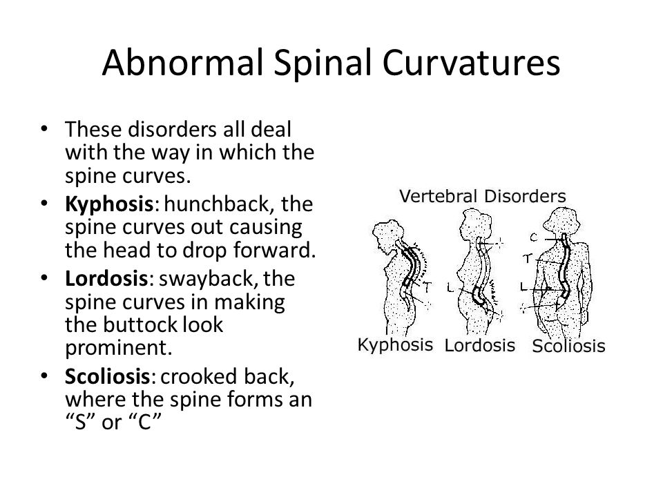 Abnormal Spinal Curvatures These disorders all deal with the way in which the spine curves. Kyphosis: hunchback, the spine curves out causing the head