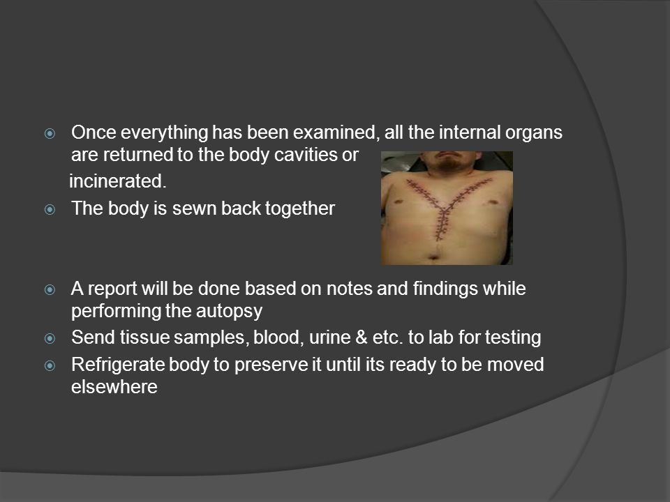  Once everything has been examined, all the internal organs are returned to the body cavities or incinerated.  The body is sewn back together  A re