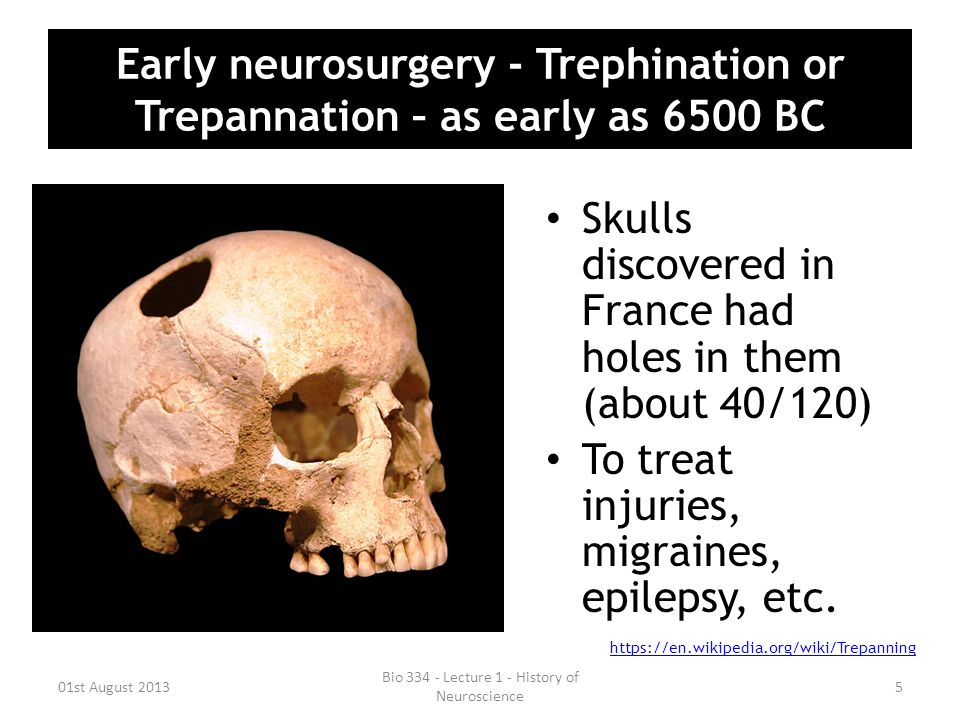Early neurosurgery - Trephination or Trepannation – as early as 6500 BC Skulls discovered in France had holes in them (about 40/120) To treat injuries, migraines, epilepsy, etc.