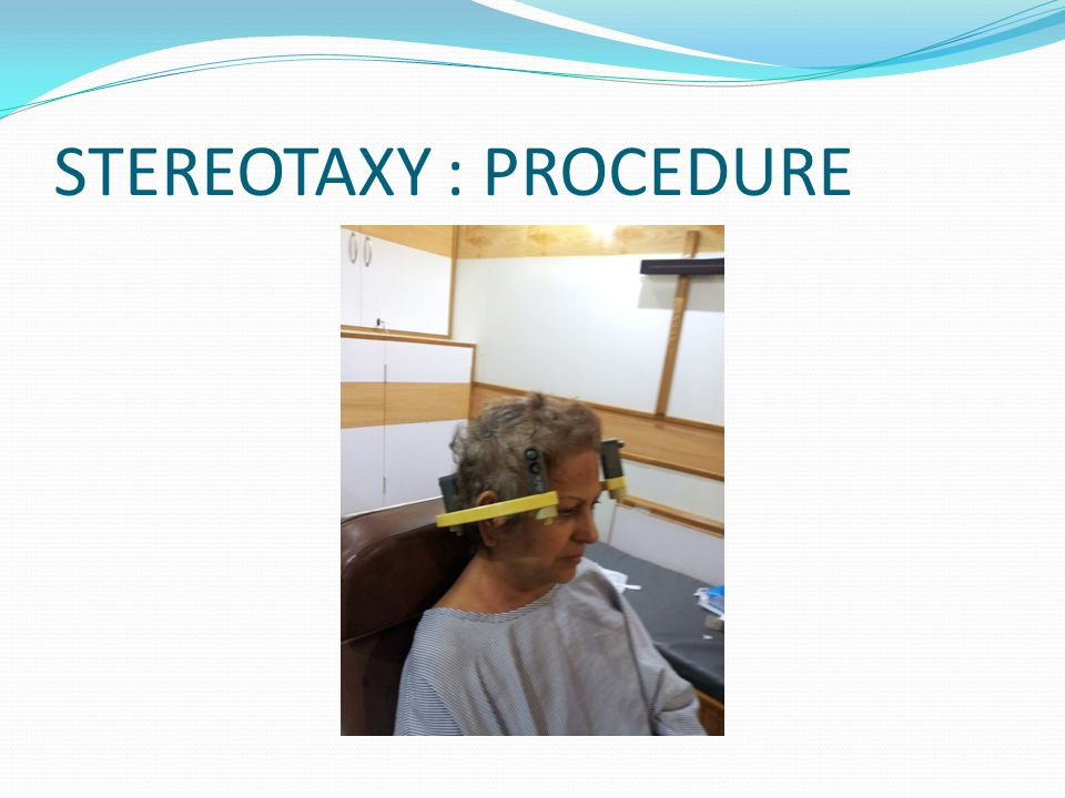 STEREOTAXY : PROCEDURE