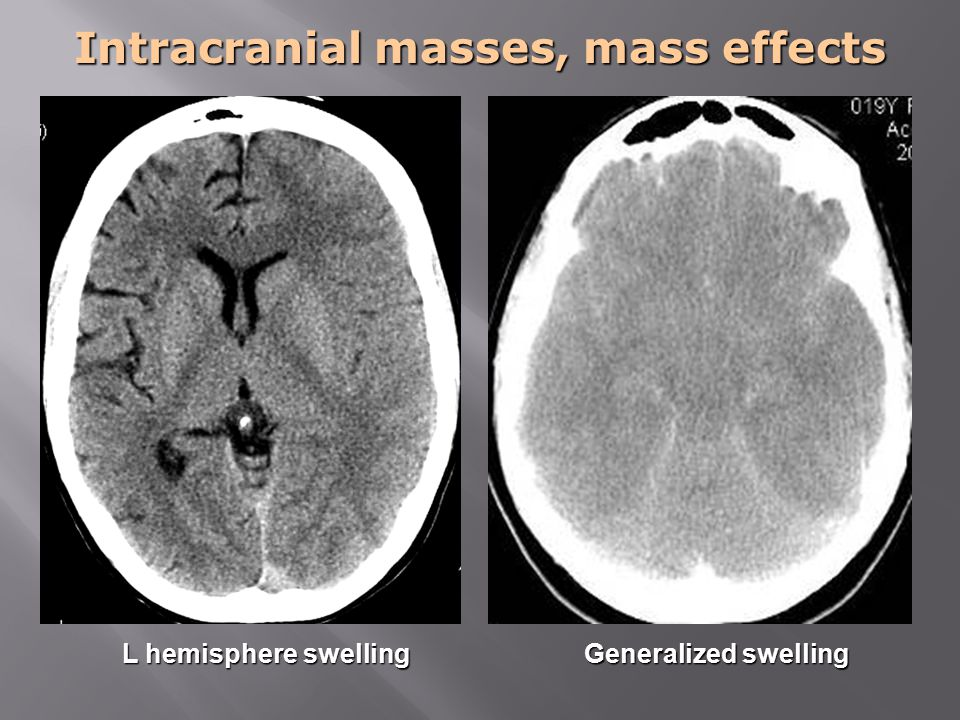 Intracranial masses, mass effects L hemisphere swelling Generalized swelling