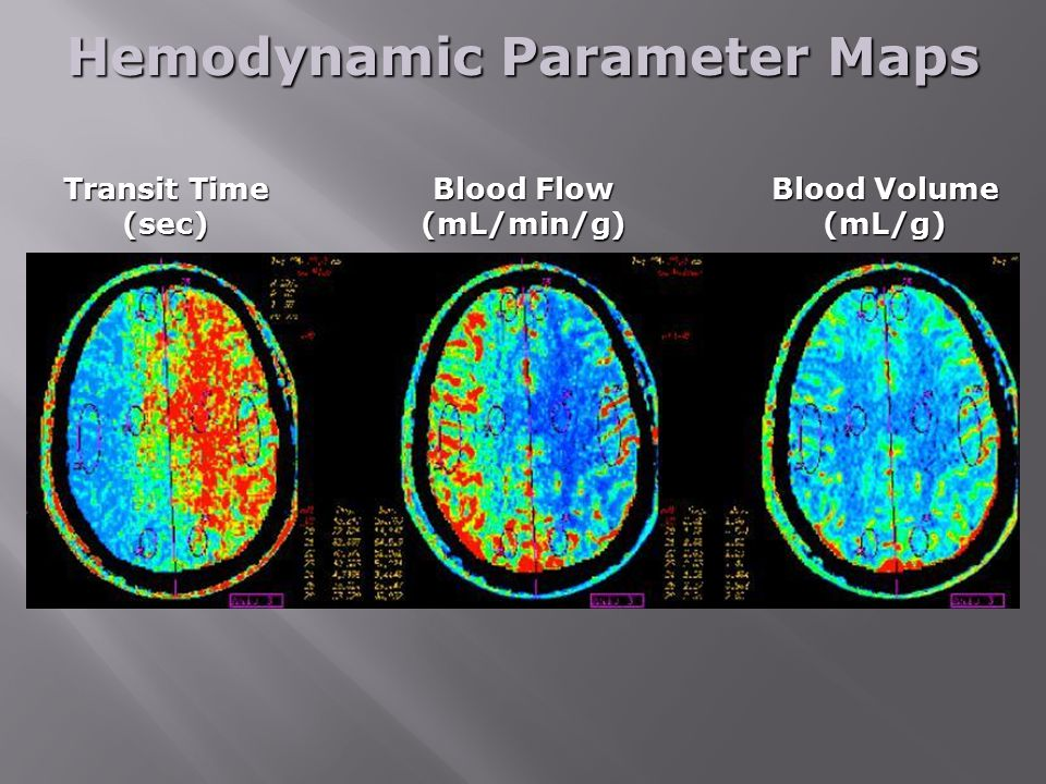 Hemodynamic Parameter Maps Transit Time (sec) Blood Flow (mL/min/g) Blood Volume (mL/g)
