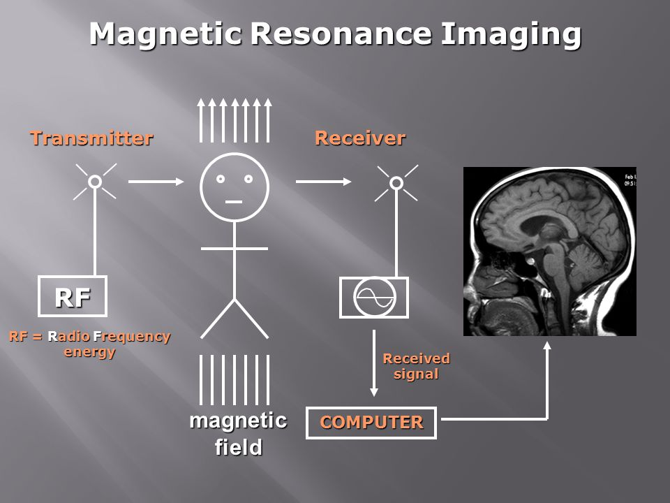 COMPUTER Magnetic Resonance Imaging magnetic field RFTransmitterReceiver RF = Radio Frequency energy Received signal