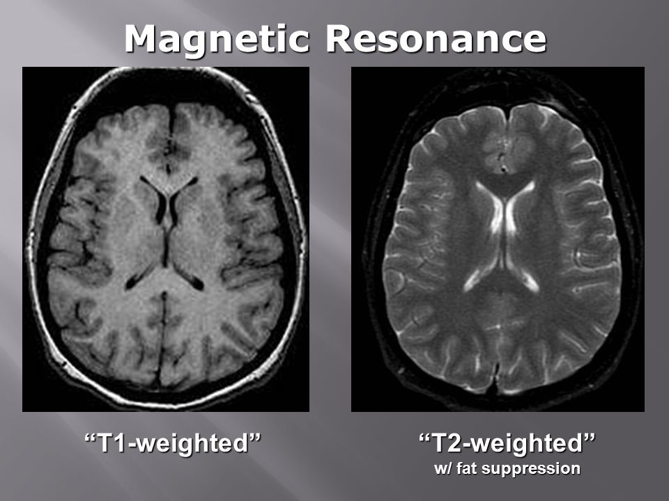 T1-weighted T2-weighted w/ fat suppression Magnetic Resonance