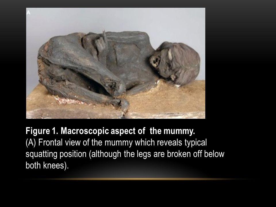 Figure 1. Macroscopic aspect of the mummy.