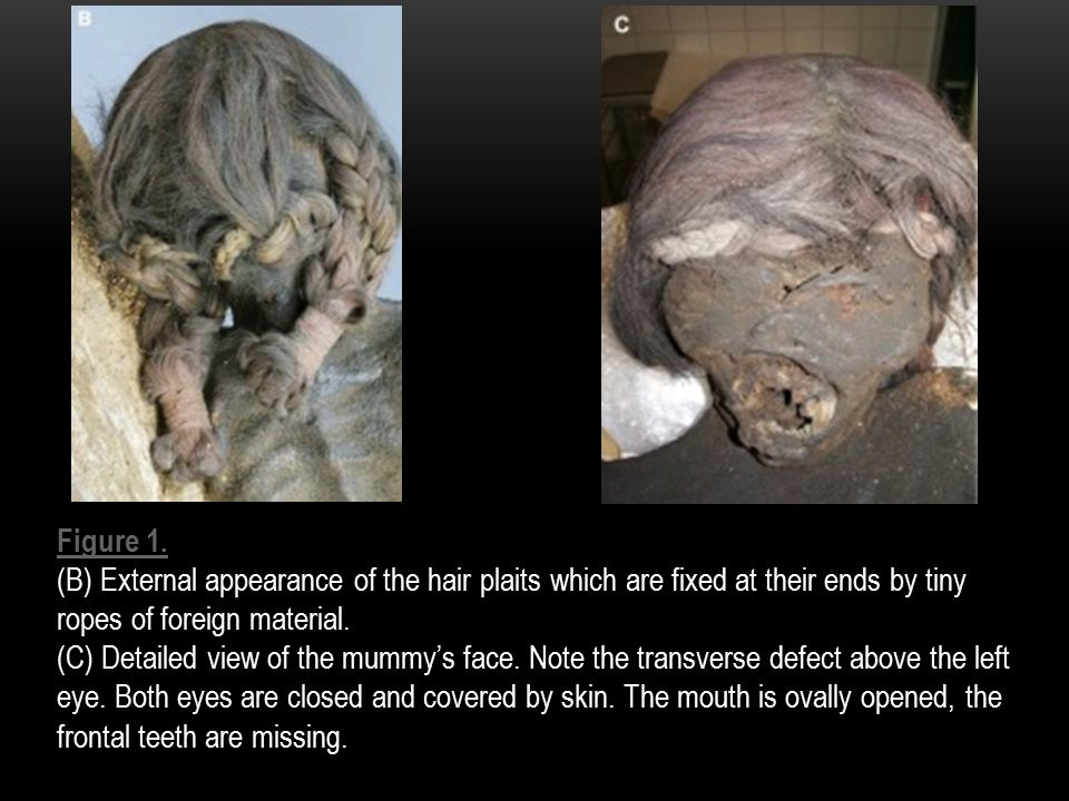 Figure 1. (B) External appearance of the hair plaits which are fixed at their ends by tiny ropes of foreign material. (C) Detailed view of the mummy's