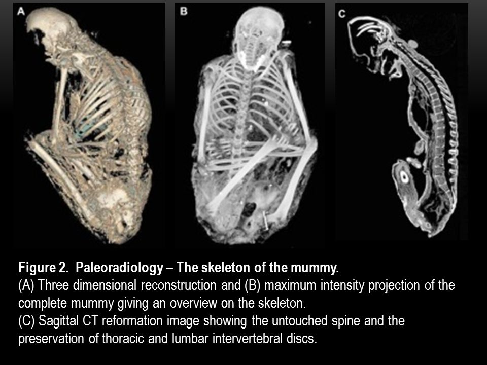 Figure 2. Paleoradiology – The skeleton of the mummy.