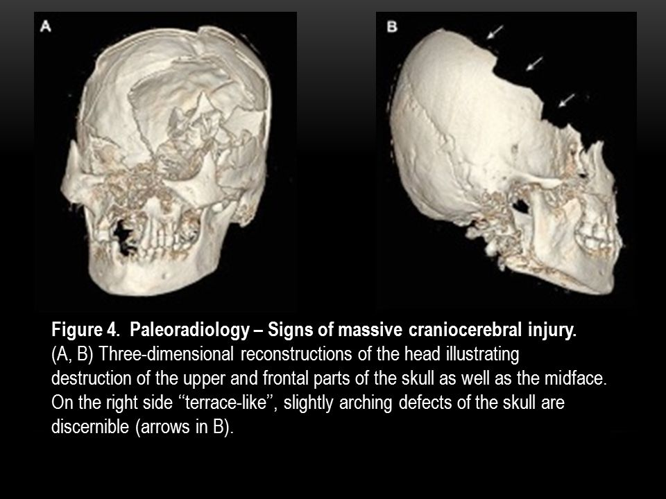 Figure 4. Paleoradiology – Signs of massive craniocerebral injury.