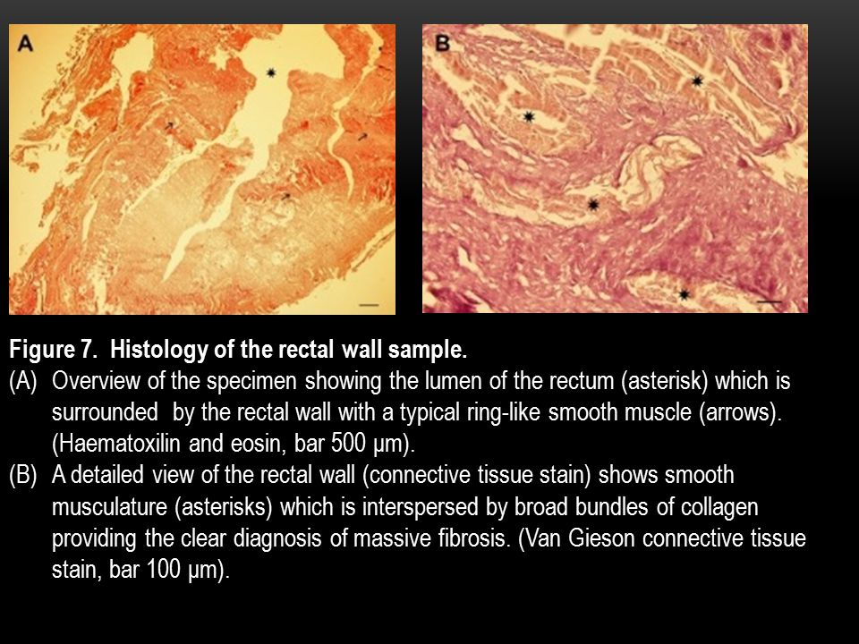 Figure 7. Histology of the rectal wall sample.