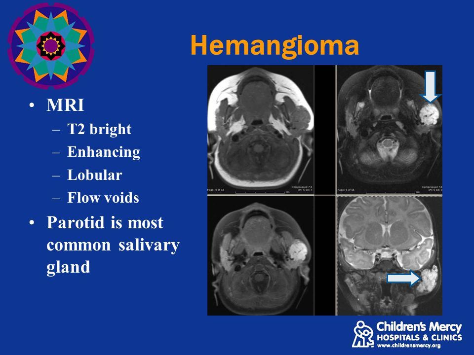 Hemangioma MRI –T2 bright –Enhancing –Lobular –Flow voids Parotid is most common salivary gland